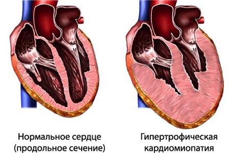 Гипертрофическая кардиомиопатия у бенгальской кошки
